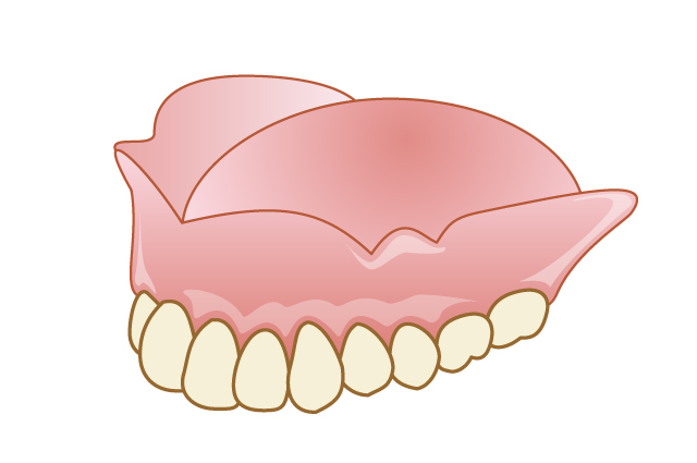 エムズ歯科コピオ外れない入れ歯フィットしていない入れ歯