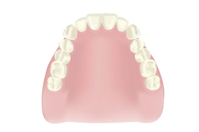 エムズ歯科コピオ外れない入れ歯、保険の入れ歯