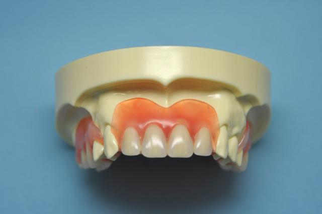 エムズ歯科コピオ外れない入れ歯