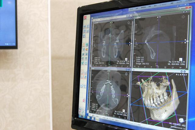 エムズ歯科コピオインプラントについてより精密な治療を行うためのCT完備