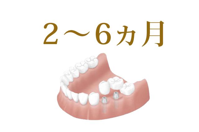 エムズ歯科コピオインプラントについてインプラントは埋め込んでから結合まで時間がかかります