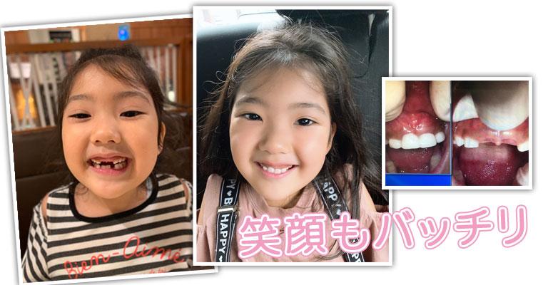 撮影用に子どもの歯を入れる
